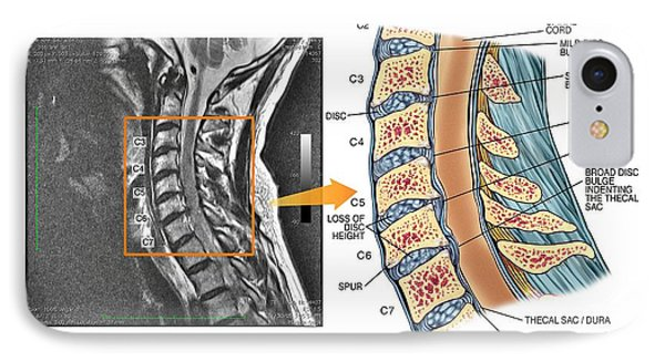 Bulging Discs In The Cervical Spine IPhone Case by John T. Alesi