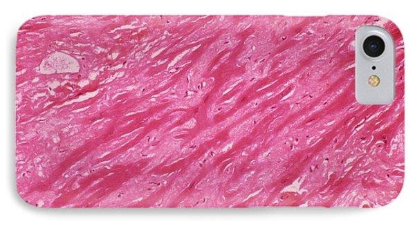 Cardiac Amyloidosis IPhone Case by Pr. R. Abelanet - Cnri