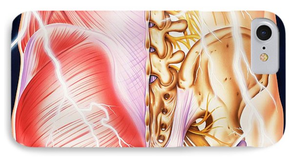 Causes Of Backache And Pain IPhone Case by John Bavosi