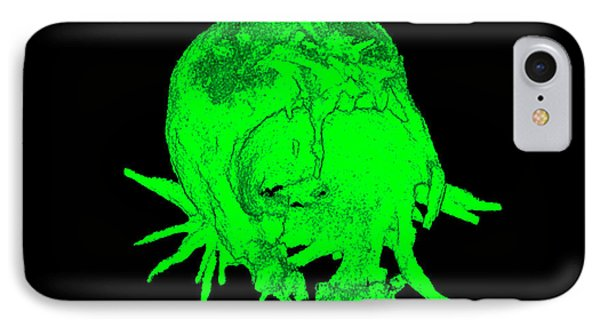 Cell Transfection IPhone Case by Dr. Chris Henstridge