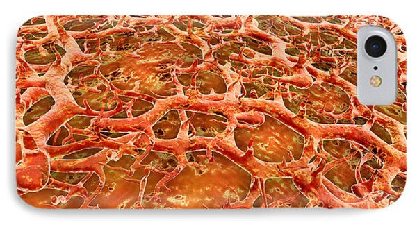 Close-up View Of Athletes Foot Fungus IPhone Case by Stocktrek Images