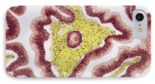 Colon Polyp IPhone Case by Steve Gschmeissner