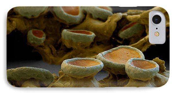 Common Orange Lichen Phone Case by Eye of Science