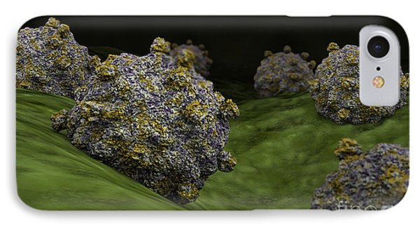 Conceptual Image Of Coxsackievirus IPhone Case by Stocktrek Images