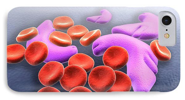 Conceptual Image Of Sickle Cell Anemia IPhone Case by Stocktrek Images