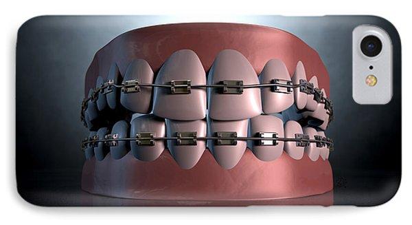 Creepy Teeth With Braces IPhone Case