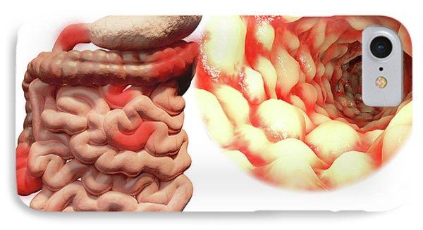 Crohn's Disease IPhone Case by Juan Gaertner