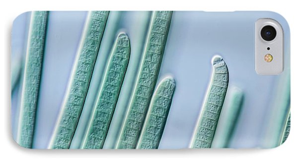 Cyanobacteria Filaments IPhone Case