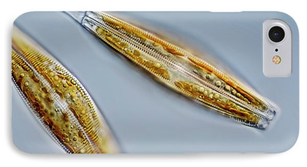 Cymbella Diatoms IPhone Case by Gerd Guenther