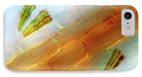Diatoms On Duckweed IPhone Case by Marek Mis