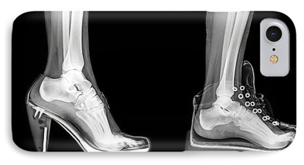 Different Shoes X-ray IPhone Case by Photostock-israel
