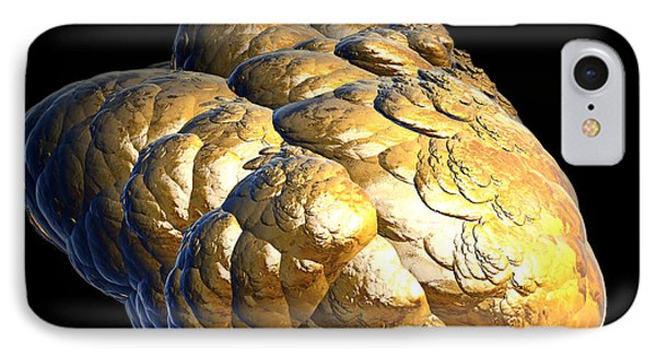Electrified Gold Nugget IPhone Case by Pete Trenholm