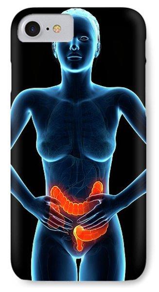 Female Digestive Pain IPhone Case by Sebastian Kaulitzki