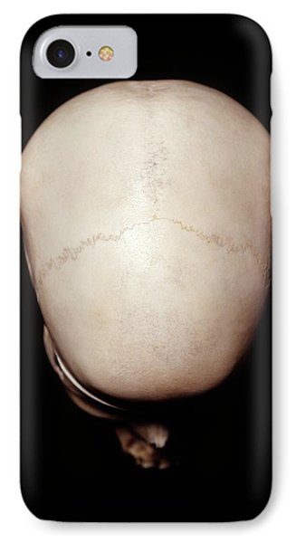 Female Human Skull IPhone Case