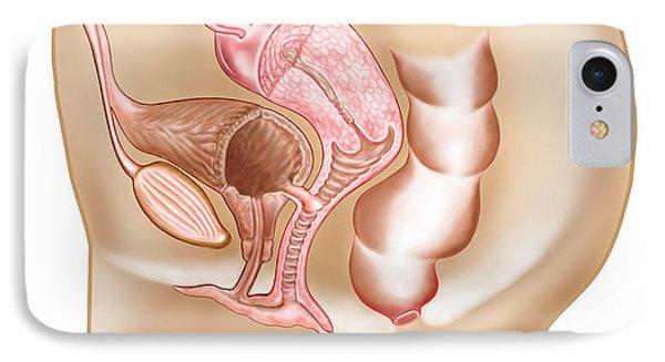 Female Vesicovaginal Fistula, Cross Phone Case by Stocktrek Images