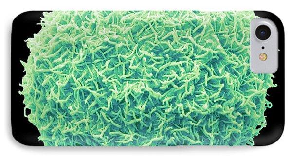 Freshwater Alga IPhone Case by Steve Gschmeissner