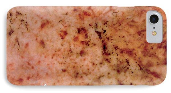 Gastric Petechiae IPhone Case by Cnri