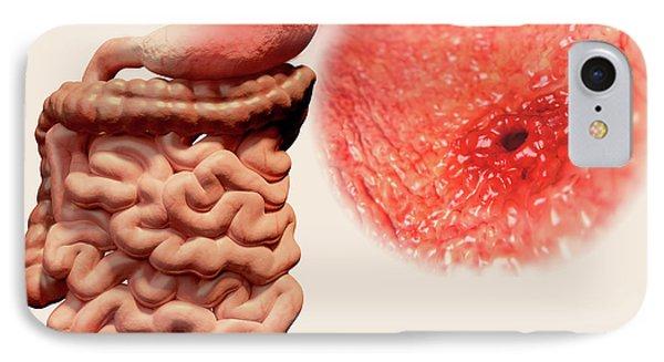 Gastric Ulcer IPhone Case by Juan Gaertner