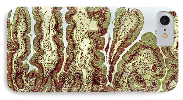 Giardiasis Light Micrograph Phone Case by Science Source