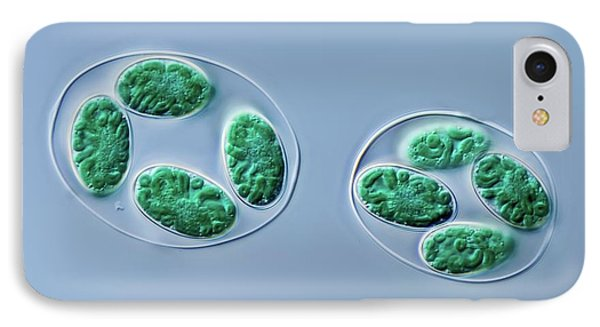 Glaucocystis Algae IPhone Case by Gerd Guenther