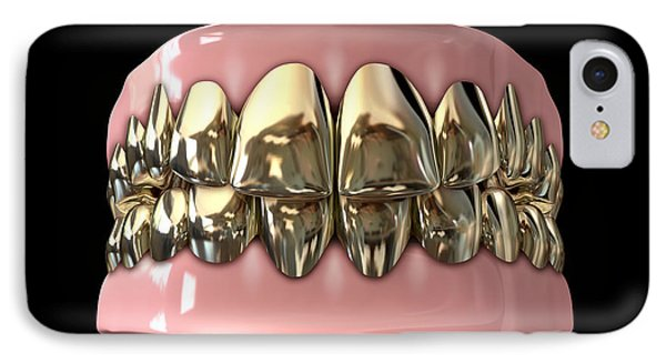 Golden Gangster Teeth And Gums IPhone Case by Allan Swart