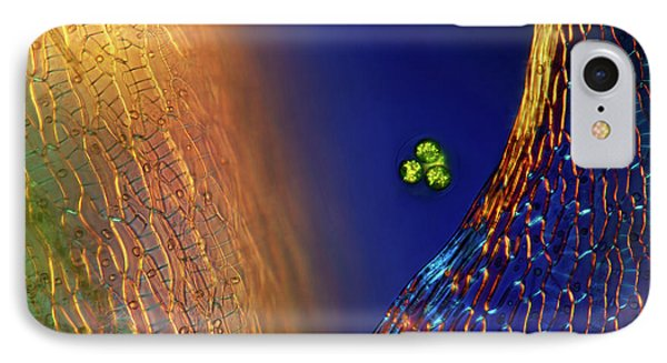 Green Algae And Sphagnum Moss IPhone Case