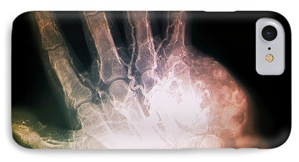 Hand Tumour IPhone Case