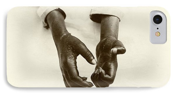 Hands Disfigured By Leprosy IPhone Case