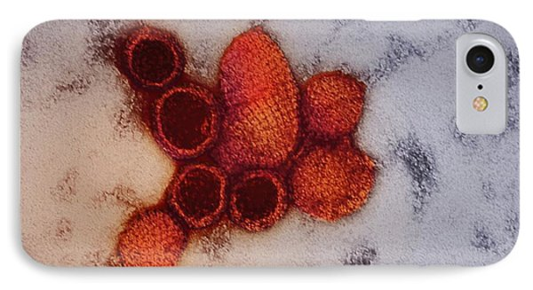 Hantavirus Particles IPhone Case by Ami Images