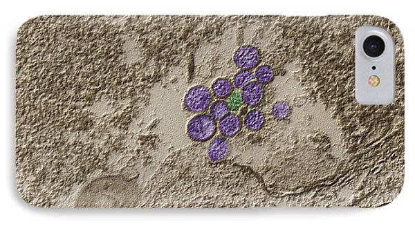 Hantavirus, Tem IPhone Case by Eye of Science