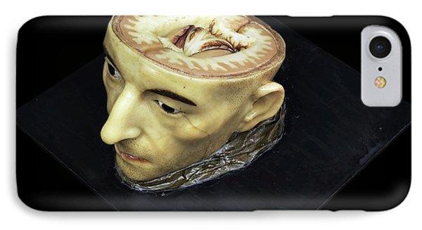 Head And Brain Model IPhone Case by Javier Trueba/msf