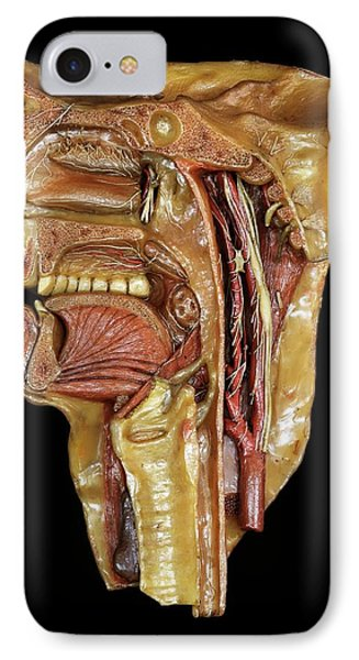 Head And Throat Model IPhone Case by Javier Trueba/msf