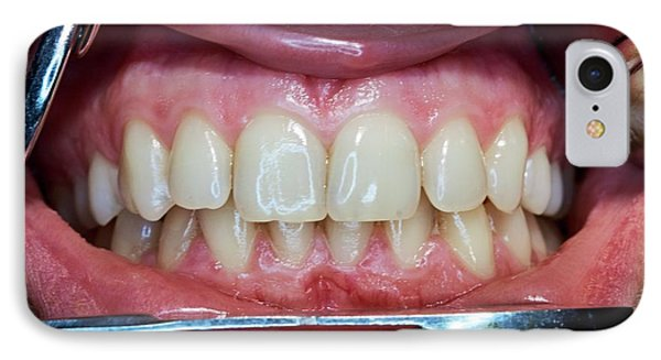 Healthy Adult Teeth IPhone Case