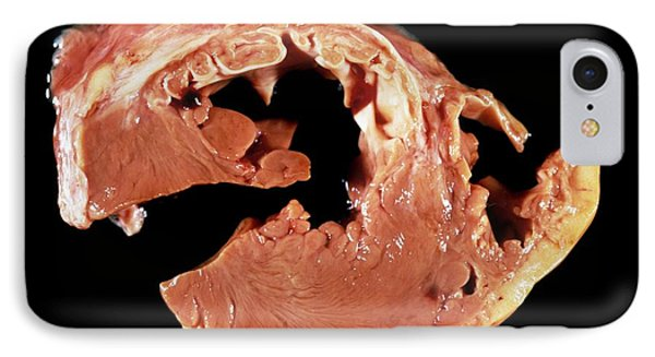 Heart Myxoedema In Hyperthyroidism IPhone Case by Pr. R. Abelanet - Cnri