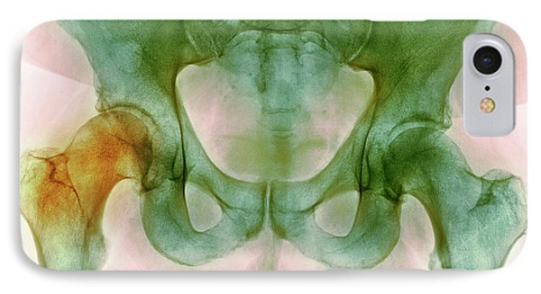 Hip Before Hip Replacement Surgery IPhone Case by Dr P. Marazzi