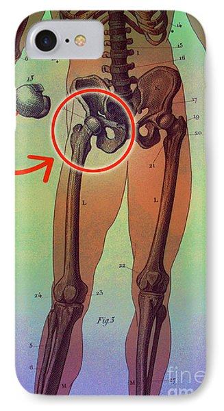 Hip Replacement Phone Case by Dennis D Potokar