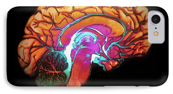 Human Brain IPhone Case by Gjlp/cnri