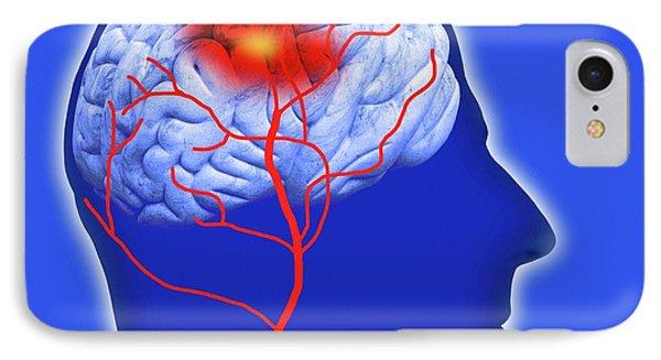 Human Brain Showing Stroke IPhone Case by Victor De Schwanberg