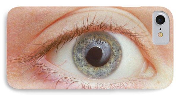 pupil iphone 7 case