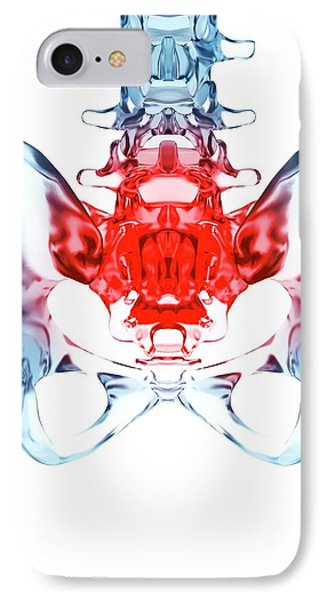 Human Sacrum Pain IPhone Case by Sebastian Kaulitzki