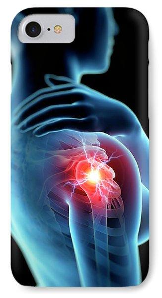 Human Shoulder Joint Pain IPhone Case by Sebastian Kaulitzki
