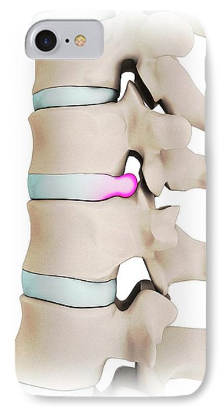 Human Spine With Slipped Disc IPhone Case by Mikkel Juul Jensen