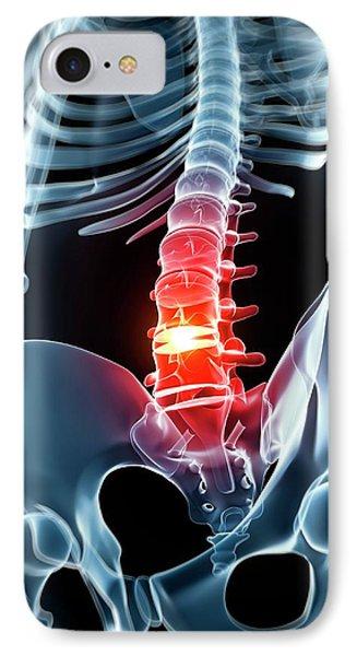 Human Spine With Slipped Disc IPhone Case by Sebastian Kaulitzki