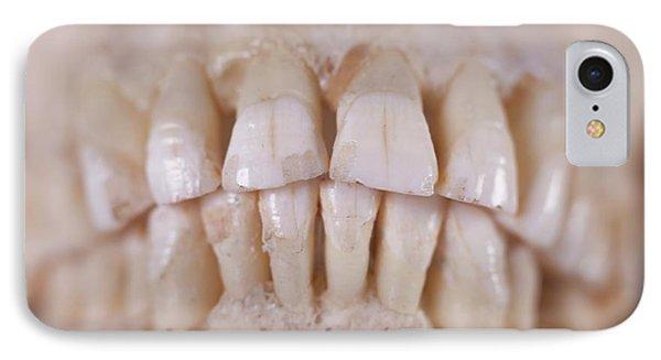 Human Teeth IPhone Case
