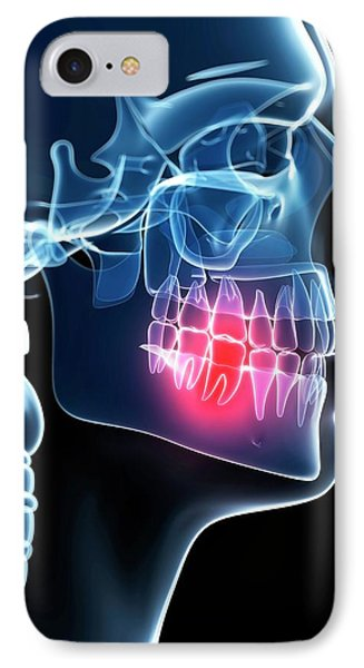 Human Tooth Pain IPhone Case