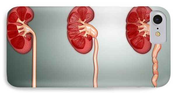 Hydronephrosis Condition Of The Kidney IPhone Case
