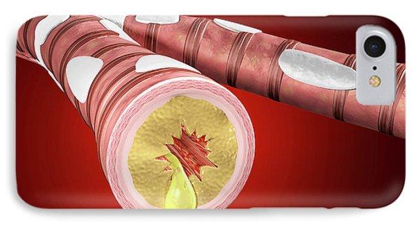 Illustration Of Bronchitis IPhone Case by Harvinder Singh