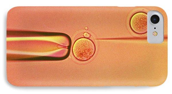 In Vitro Fertilisation IPhone Case