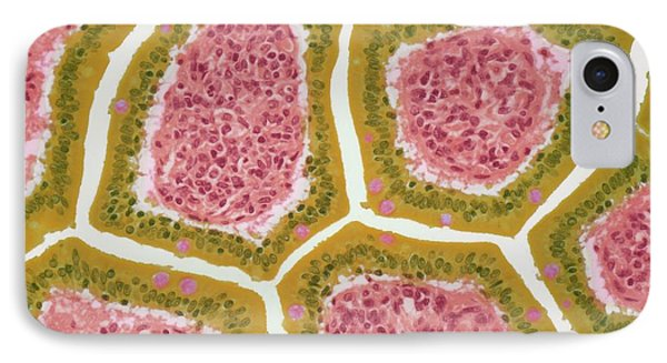 Intestinal Villi IPhone Case by Steve Gschmeissner