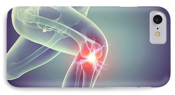 Jogger With Knee Pain IPhone Case by Sebastian Kaulitzki